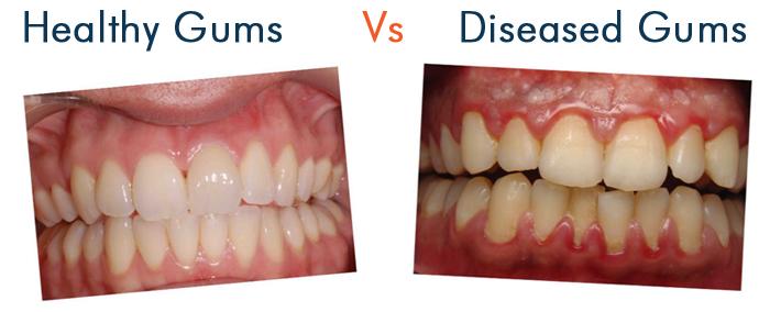 Gum disease treatment Mascot | Dental Turrella | Top Smile ...